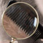 anomalie cuoio capelluto