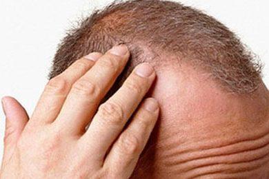 alopecia caduta capelli stress