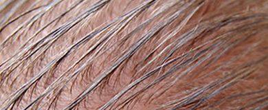 alopecia sebo