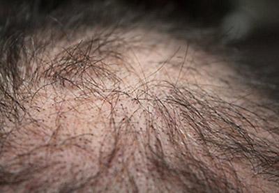 capelli diradati