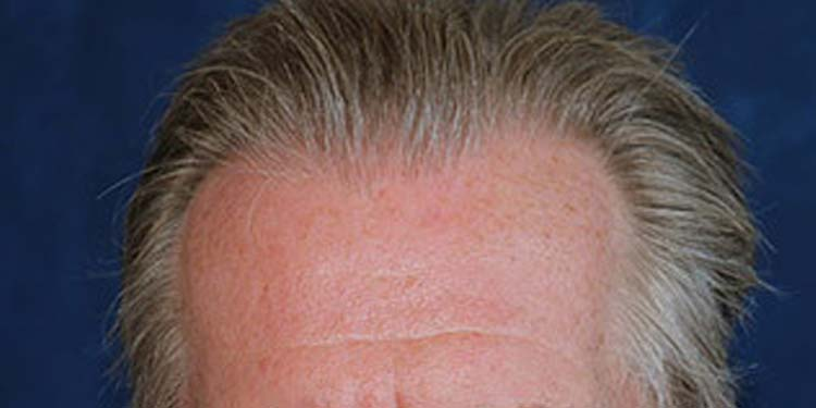 defluvio perdita capelli