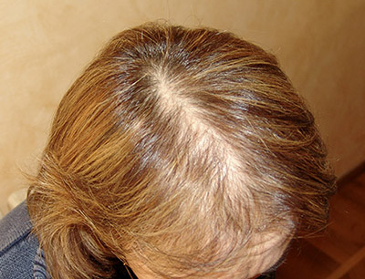 diradamento capelli donne