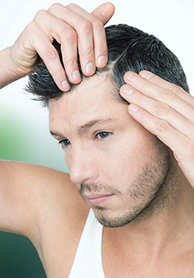 stempiatura capelli diradamento