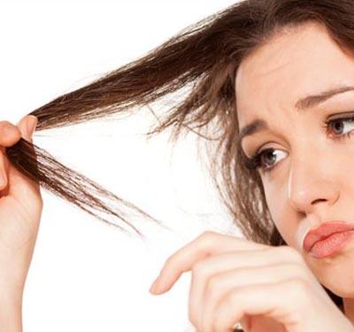 stress caduta capelli