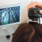 microcamera per capelli